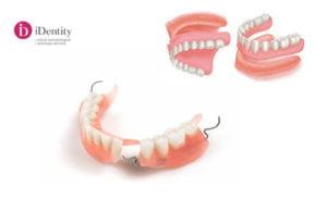 Adezivul pentru proteza dentară
