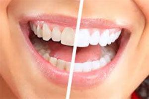 Albirea dinţilor la fumători