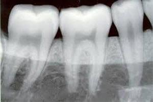 Radiografia dentară, metoda de monitorizare a sănătăţii cavităţii orale