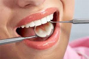 Afecţiunile gingiei