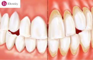Parodontoza – o nenorocire complexă cu o cauză banală