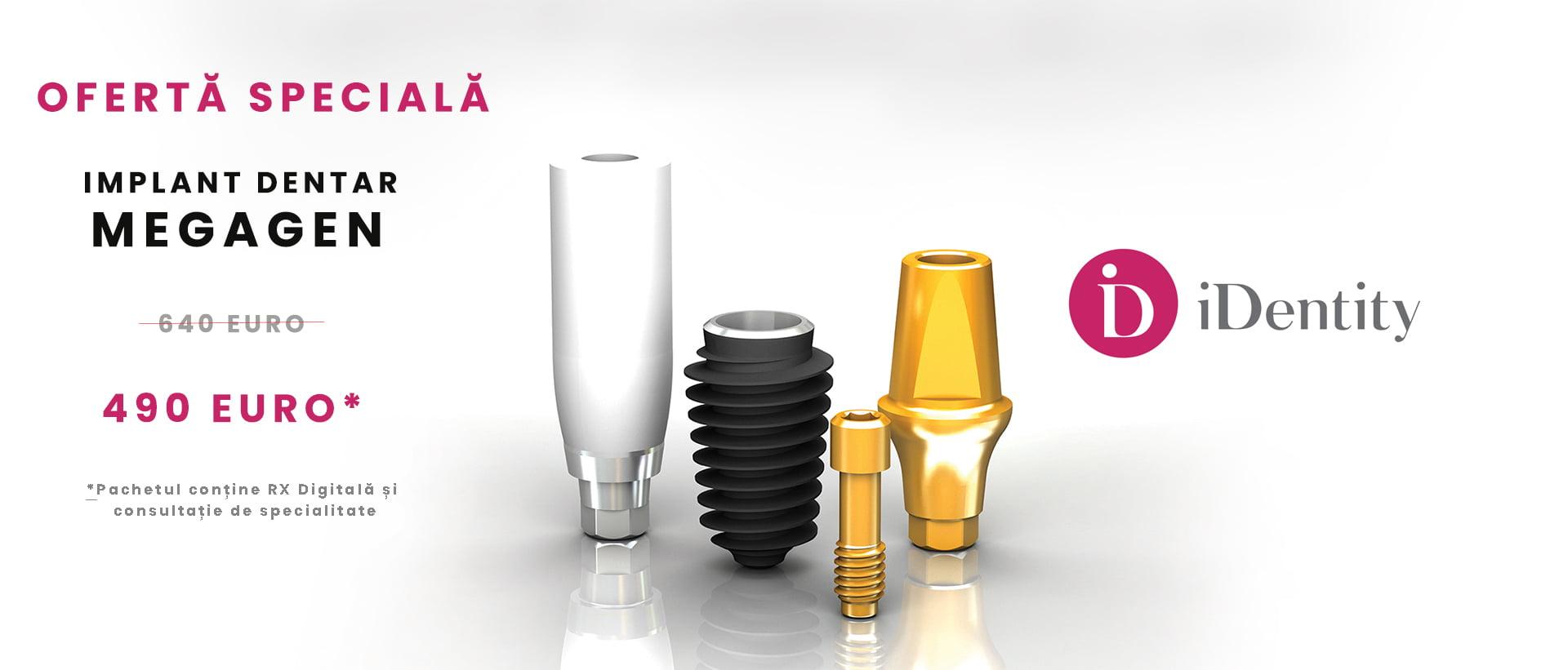 Megagen, cea mai avantajoasa solutie pentru implanturi dentare de top
