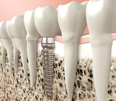 Osteointegrarea, cheia unui implant de succes – implanturile Megagen AnyRidge