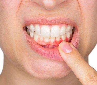 Parodontoza influențează negativ starea sănătății în timpul sarcinii