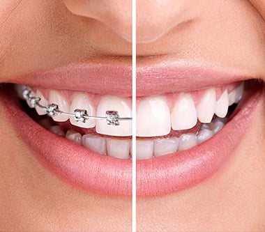 Cum rezolvăm urgențele ortodontice pe timp de pandemie?