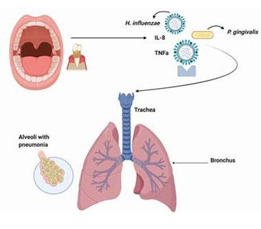 Flora bacteriană orală vs. Covid-19