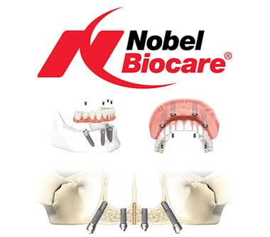 Nobel Biocare, implanturi premium la costuri rezonabile!