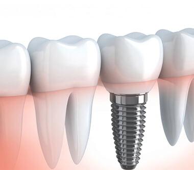 Implantul dentar: calitatea pe primul loc